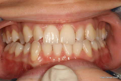 Before Teeth Invisalign/ Enlighten Whitening - Full upper/lower arch teeth
