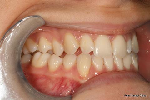 Before Teeth Invisalign/ Enlighten Whitening - Right full upper/lower arch teeth