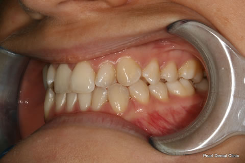 Before Teeth Invisalign/ Enlighten Whitening - Left full upper/lower arch teeth