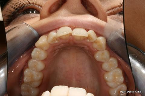 Before Teeth Invisalign/ Enlighten Whitening - Upper arch teeth