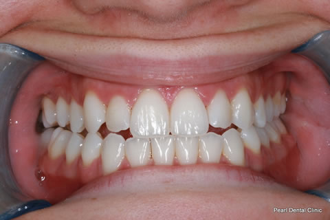 After Teeth Invisalign/ Enlighten Whitening - Full upper/lower arch teeth