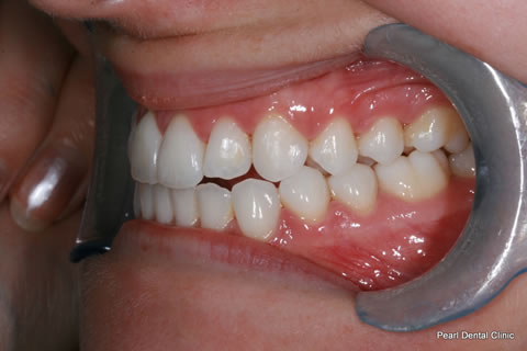 After Teeth Invisalign/ Enlighten Whitening - Left full upper/lower arch teeth