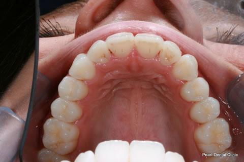 After Teeth Invisalign/ Enlighten Whitening - Upper arch teeth