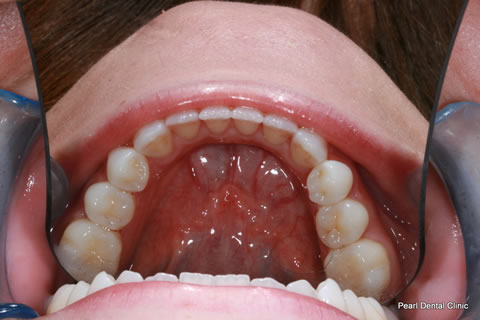 After Teeth Invisalign/ Enlighten Whitening - Lower arch teeth