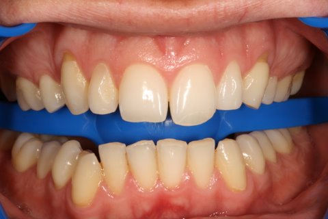 Lumineers Before After - Full arch upper front teeth