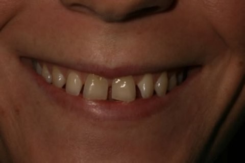 Teeth Whitening/ Lumineers Before After - Upper/lower teeth