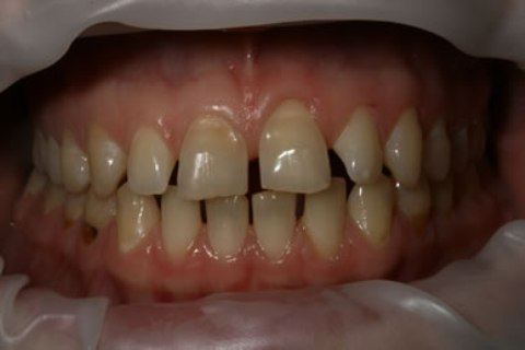 Teeth Whitening/ Lumineers Before After - Full arch upper/lower teeth