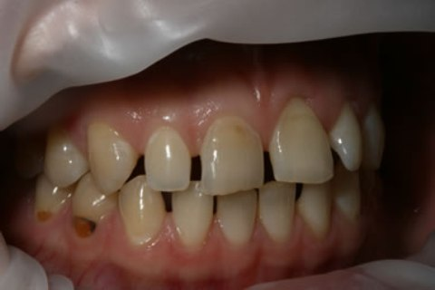 Teeth Whitening/ Lumineers Before After - Right full arch upper/lower teeth