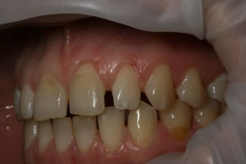 Teeth Whitening/ Lumineers Before After - Left full arch upper/lower teeth