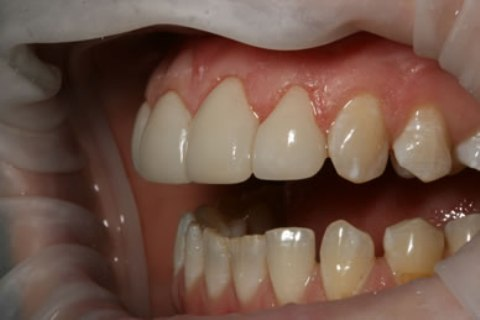 Teeth Whitening/ Lumineers Before After - Left full upper/lower arch teeth