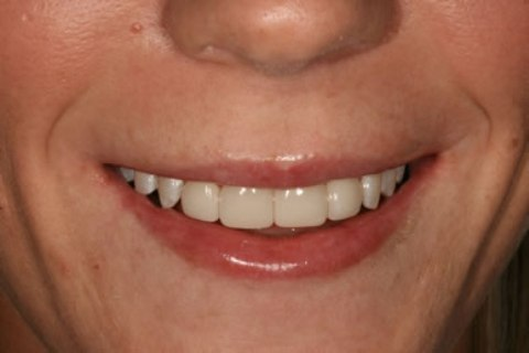 Teeth Whitening/ Lumineers Before After - Full smile