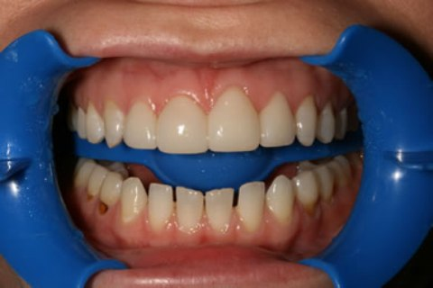 Teeth Whitening/ Lumineers Before After - Full upper/lower arch teeth