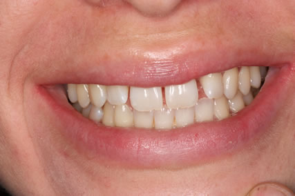 Teeth Gap Before After - Full smile