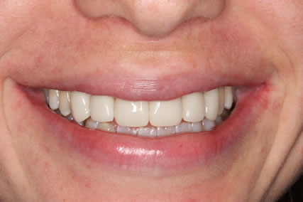 Teeth Gap Before After Closed - Full smile