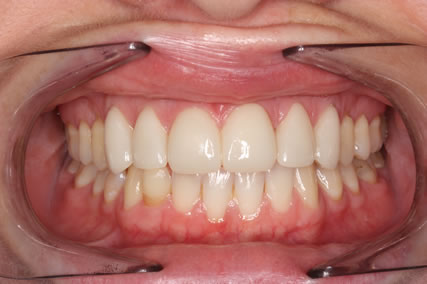 Teeth Gap Before After Closed - Full arch upper/lower teeth lumineers