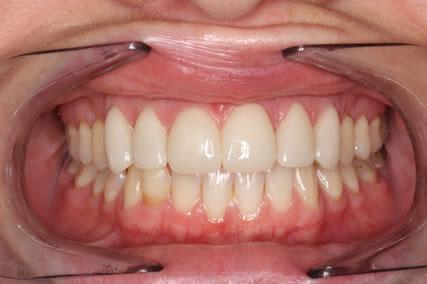 Teeth Gap Before After Closed - Full arch upper/lower teeth lumineers