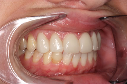 Teeth Gap Before After Closed - Right full arch upper/lower teeth lumineers