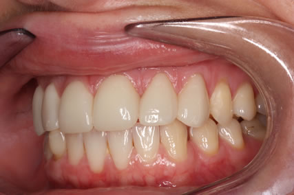 Teeth Gap Before After Closed - Left full arch upper/lower teeth lumineers