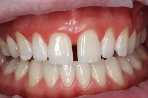 Teeth Gap Before After Closed - Full arch upper/lower teeth