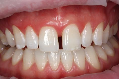Teeth Gap Before After Closed - Full arch upper/lower teeth