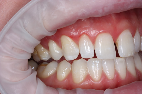 Teeth Gap Before After Closed - Right full arch upper/lower teeth