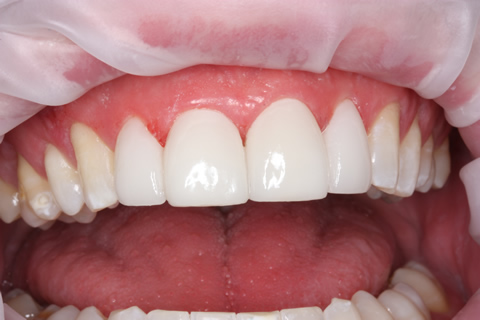 Teeth Gap Before After Closed - Upper teeth lumineers