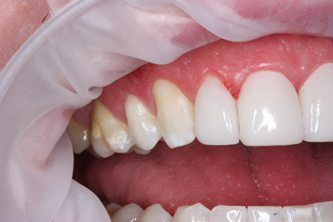 Teeth Gap Before After Closed - Right top/bottom teeth lumineers
