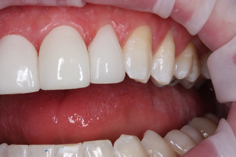 Teeth Gap Before After Closed - Left top/bottom teeth lumineers
