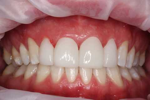 Teeth Gap Before After Closed - Full upper/lower arch teeth lumineers
