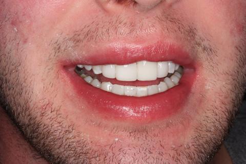 Teeth Gap Before After Closed - Upper teeth lumineers