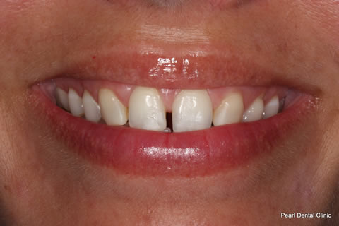 Teeth Canines/ Gap Before After - Upper teeth