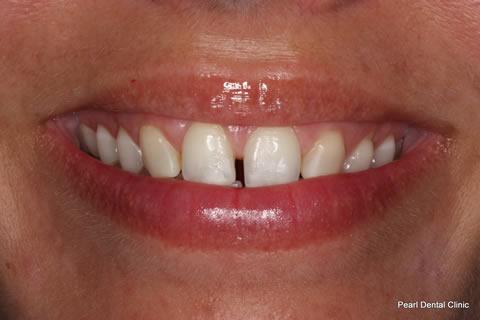 Teeth Canines/ Gap Before After - Upper teeth