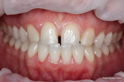 Teeth Canines/ Gap Before After - Full upper/lower arch teeth