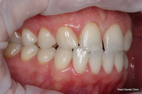 Teeth Canines/ Gap Before After - Right full upper/lower arch teeth