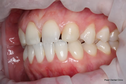 Teeth Canines/ Gap Before After - Left full upper/lower arch teeth