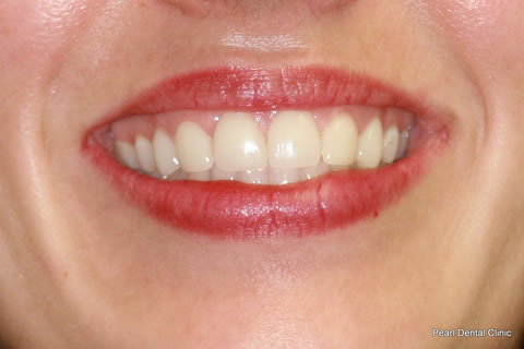 Teeth Canines/ Gap Before After - Front teeth lumineers