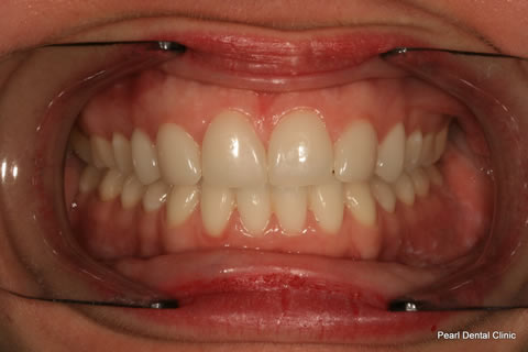 Teeth Canines/ Gap Before After - Full arch teeth lumineers