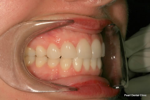 Teeth Canines/ Gap Before After - Right full arch teeth lumineers