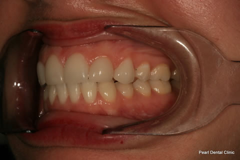 Teeth Canines/ Gap Before After - Left full arch teeth lumineers
