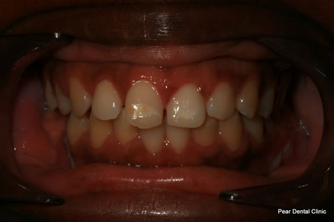 Teeth Incisors/ Gaps Before After - Full upper/lower arch teeth