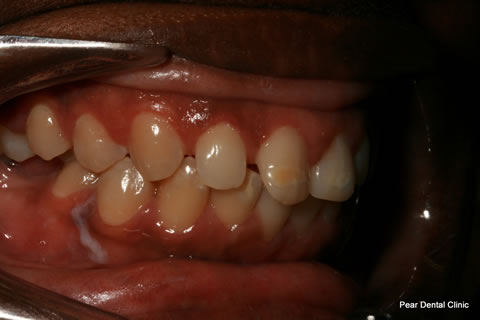 Teeth Incisors/ Gaps Before After - Right full upper/lower arch teeth
