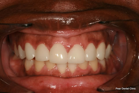 Teeth Incisors/ Gaps Before After - Full upper/lower arch teeth lumineers