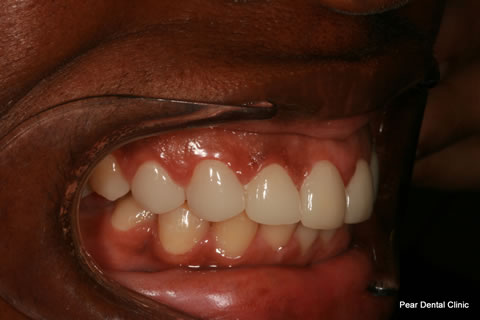 Teeth Incisors/ Gaps Before After - Right full upper/lower arch teeth lumineers