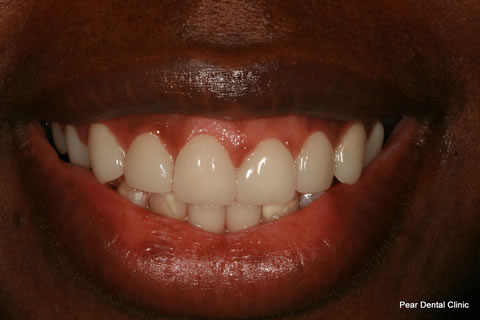 Teeth Incisors/ Gaps Before After - Full Smile
