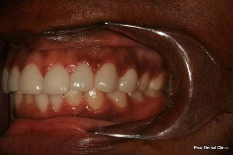 Teeth Incisors/ Gaps Before After - Left full upper/lower arch teeth lumineers