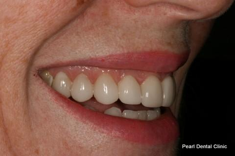Teeth Gap Before After - Right full top/bottom arch teeth lumineers