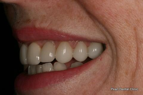 Teeth Gap Before After - Left full top/bottom arch teeth lumineers