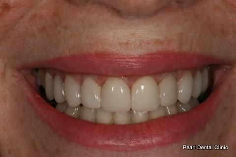 Teeth Gap Before After - Full top/bottom arch teeth lumineers