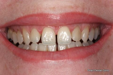 Teeth Gap Before After - Top/Bottom teeth