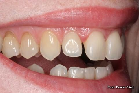 Teeth Gap Before After - Right top/bottom teeth